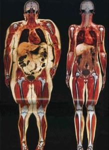 GT Get Fit Tip: Visceral Fat Picture worth 250lbs
