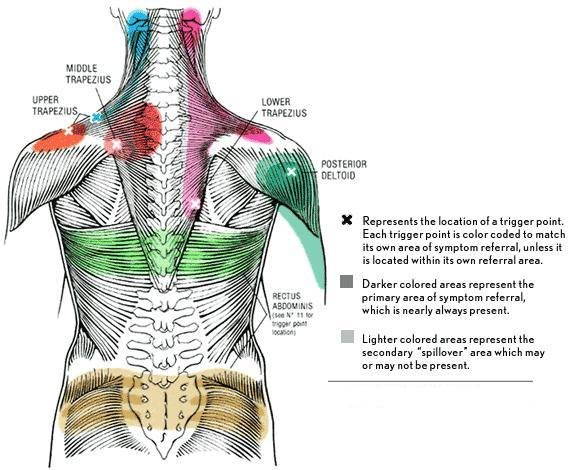 Trigger Points A Typical Source For Pain
